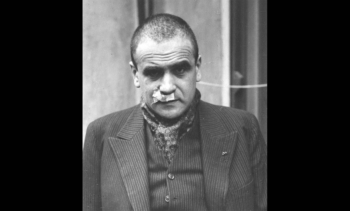 Ludwig Neumann, a German Jew, following his release from Dachau in October 1938.